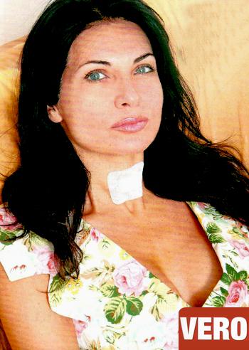 "Nadia Bengala: ""Mi hanno asportato la tiroide"" Foto Vita da Vip - Foto ..."