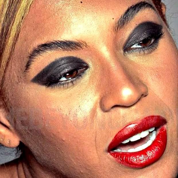 Medicine di acne a pelle grossa