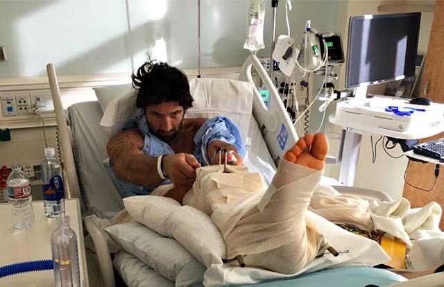 Walter Nudo, incidente in moto: ricoverato con una gamba rotta