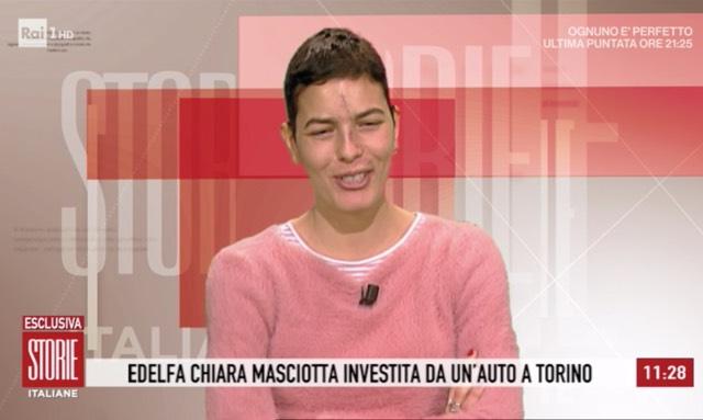Edelfa Chiara Masciotta mostra le cicatrici in tv: