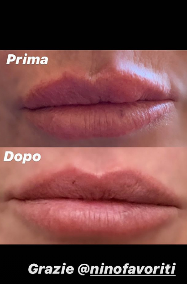 Antonella Mosetti: ecco il prima e il dopo la rimozione dei filler alle labbra. Foto