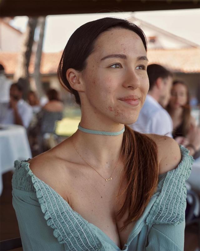 Aurora Ramazzotti, 23 anni, mostra il suo viso senza filtri, con brufoli e altre imperfezioni