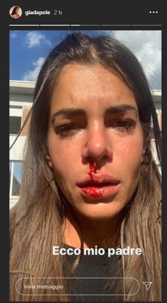 Ex concorrente di 'Temptation Island' col naso sanguinante: 'Mio padre mi ha picchiata'