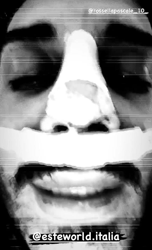 Francesco Chiofalo ha rifatto il naso: eccolo dopo l'intervento