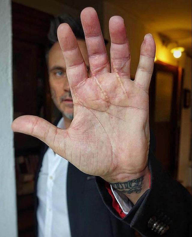 Nek mostra per la prima volta la mano dopo l'Incidente in cui ha rischiato di perderla: foto