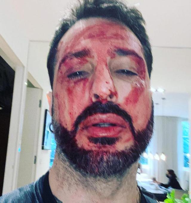 Fabrizio Corona si è tagliato i polsi: la protesta per non tornare in carcere