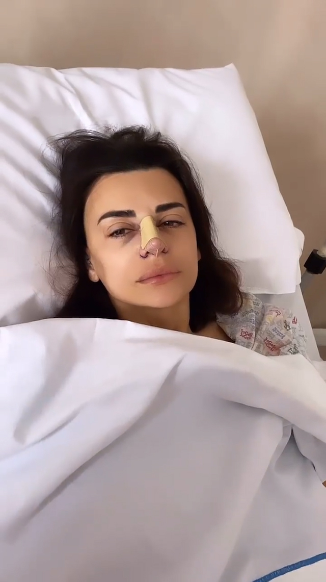 Elga subito dopo essere tornata in camera: al naso sono state applicate una serie di protezioni post-operatorie