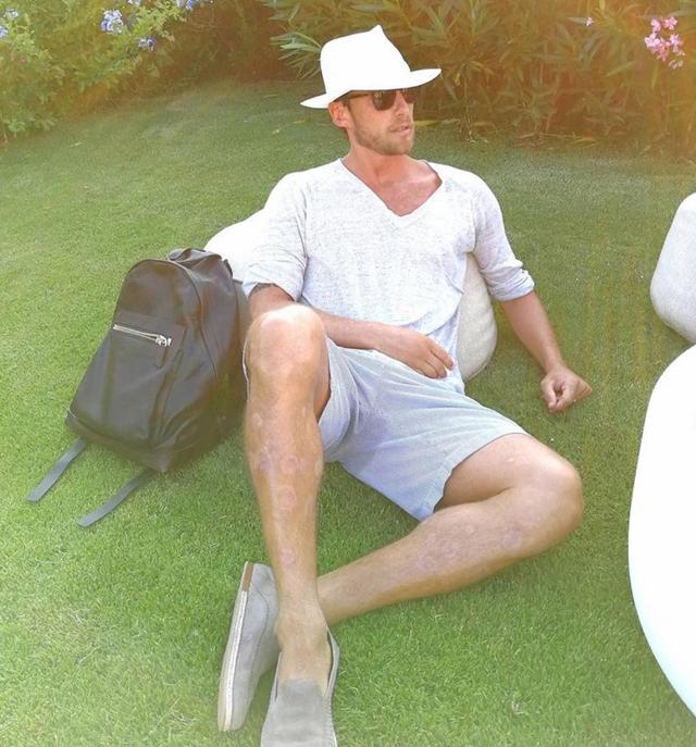 Claudio Marchisio, 35 anni, per molti anni ha sofferto di psoriasi sulle gambe, sotto le ginocchia