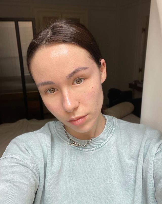 Aurora Ramazzotti, 24 anni, pubblica un selfie in cui la sua pelle sembra proprio 'guarita' dall'acne