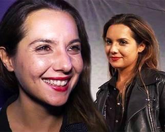 Melissa P. e l'acne: 'Gli insulti che ho ricevuto sono umilianti'