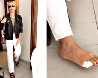 Alessia Marcuzzi, dito mignolo del piede rotto