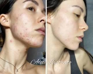 Aurora Ramazzotti, la sfida contro l'acne