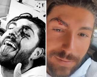 Incidente al volto per Ignazio Moser
